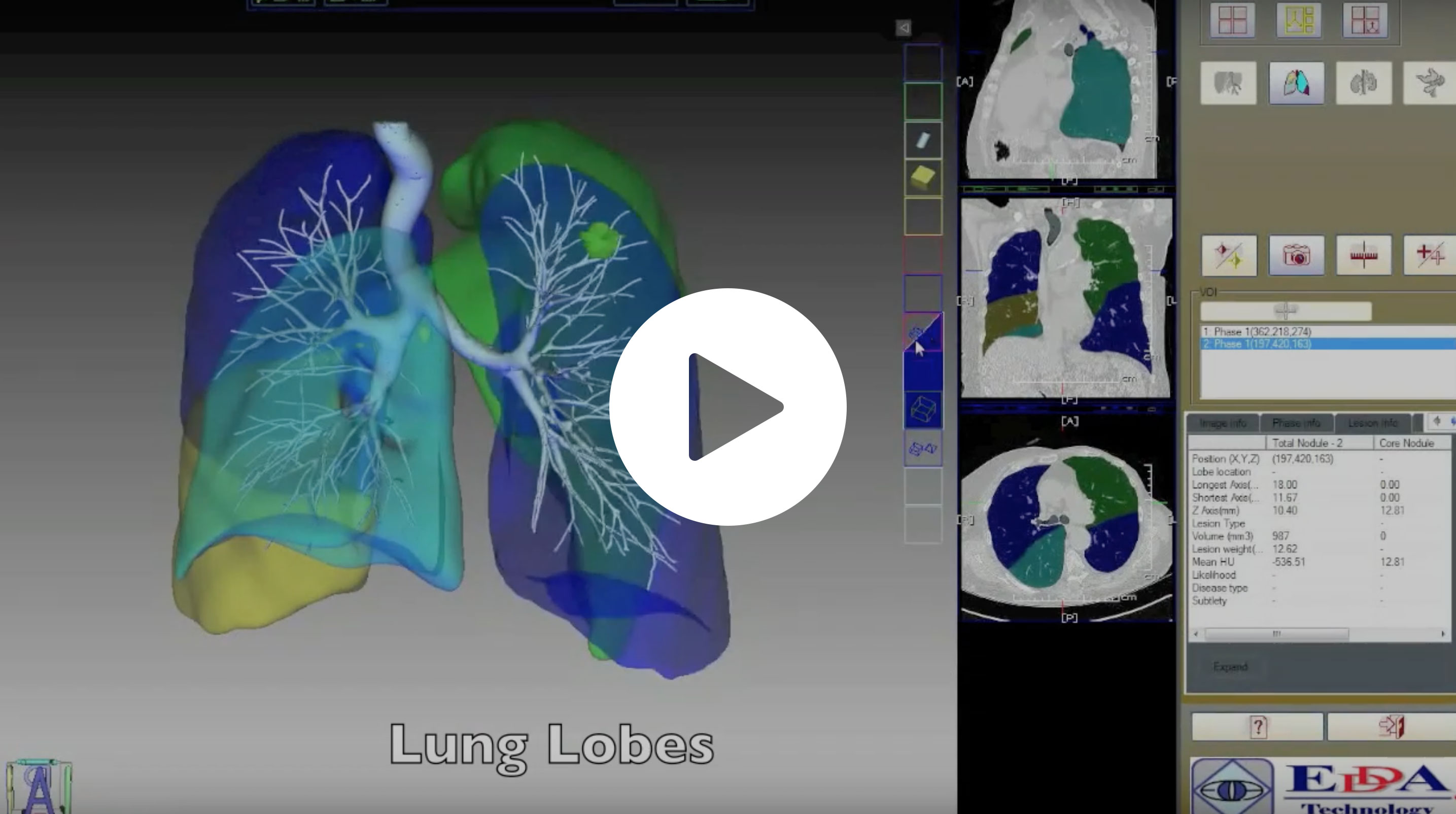 Lung Segmentectomy 2