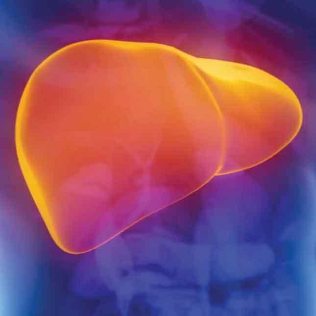 3D Liver Imaging