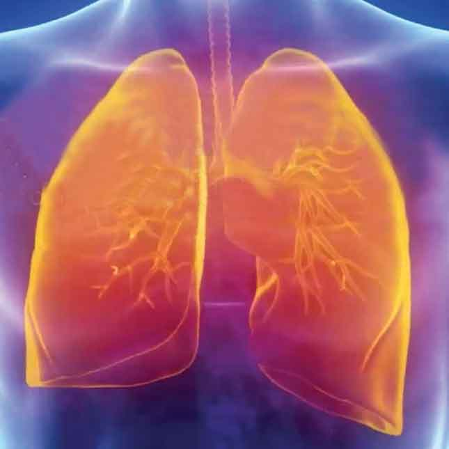 3D Lung Imaging